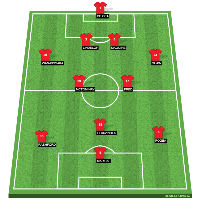 United's expected formation against Burnley